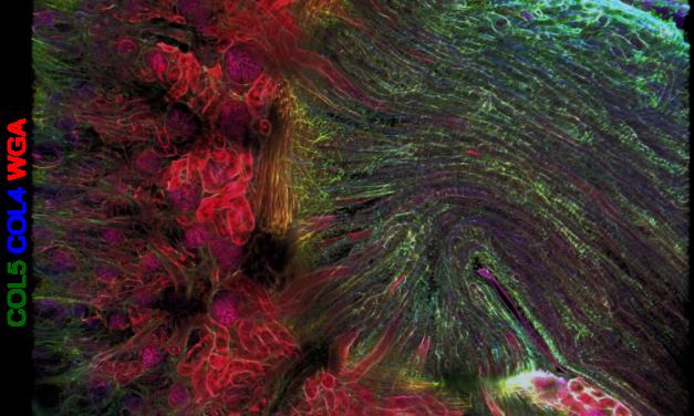 Rinichiul articifial, un posibil tratament pentru bolnavii care necesită transplant renal